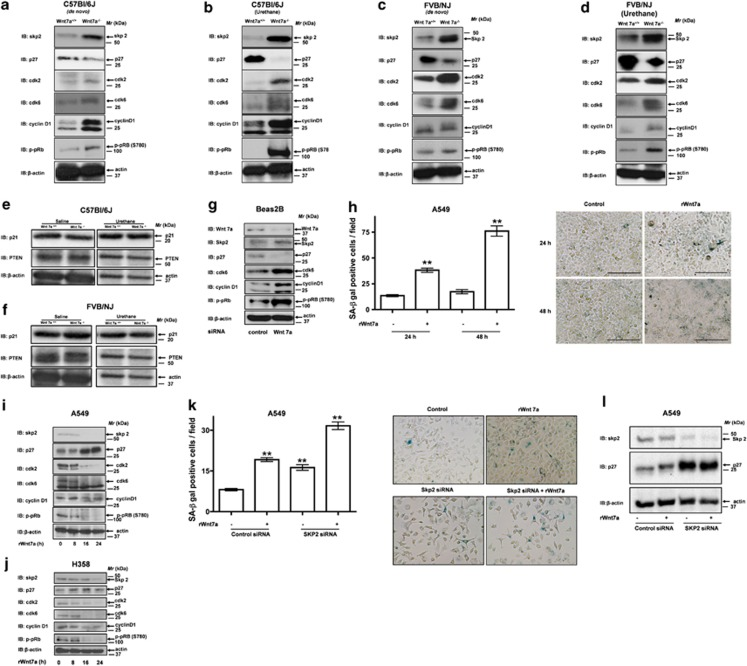 Wnt7a regulates Rb phosphorylation via inactivation of SKP2. ( a – f ) Representative images of the western blotting analysis for the indicated proteins in the lung lysates of wild-type ( n =5) and Wnt7a-null mice ( n =5) in C57Bl/6J, or FVB/NJ strains treated with either saline or urethane. ( g ) Human bronchial epithelial cells (Beas2B) were treated with either control siRNA or Wnt7a siRNA for 48 h. The cell lysates were later probed for the indicated proteins, and the representative images are displayed in the figure. ( h – j ) Human lung adenocarcinoma cells (A549 or H358), which are devoid of Wnt7a expression, were stimulated with recombinant Wnt7a for the indicated periods of time. The cells were later analyzed for SA-β-galactosidase activity ( h ) or the expression of indicated senescence markers ( i , j ) as described in the Materials and methods section. Representative blots from three independent highly reproducible experiments are displayed in the figure. For SA-β-galactosidase staining, left panel indicates the number of SA-β-gal-positive cells/field, and representative images are displayed to the right. ** P