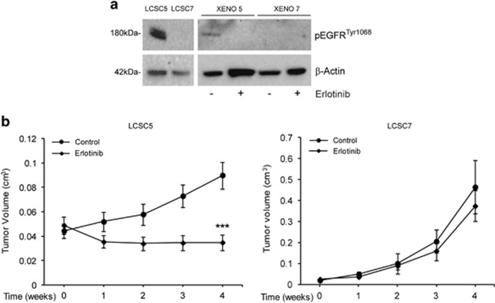 <t>EGFR</t> activation and Erlotinib antitumor activity in LCSC-derived ADC xenografts. ( a ) Immunoblot analysis of EGFR <t>tyr1068</t> in sensitive (LCSC5) or resistant (LCSC7) LCSCs and in the corresponding xenografts untreated (−) or treated (+) with erlotinib. ( b ) Growth curves of the same control or erlotinib-treated xenografts as in ( a ). Mean±S.D. of three independent experiments is shown. *** P