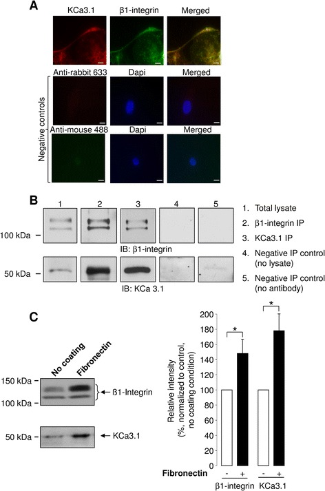 Cellular co-distribution, co-immunoprecipitation and membrane expression of β1-integrin and KCa3.1 channels. a . Representative immunofluorescence images of KCa3.1 and β1-integrin staining performed on ATII cells using anti-KCa3.1, anti-β1-integrin, anti-rabbit 633 (for KCa3.1 detection) and anti-mouse 488 (for β1-integrin detection) antibodies. Color superposition shows similar cellular distribution of KCa3.1 and β1-integrin in ATII cells (merge panel, Scale bars, 10 μm). No or diffuse signal was detected with the Alexa fluor 488 and Alexa fluor 633 coupled secondary antibodies in control experiments (negative controls). b . Representative immunoblots showing β1-integrin and KCa3.1 co-immunoprecipitations. β1-integrin (upper panels, IB: β1-integrin) and KCa3.1 (lower panels, IB: KCa3.1) proteins were revealed with specific antibodies after β1-integrin and KCa3.1 immunoprecipitation with anti-β1-integrin (lane 2 « β1-integrin IP ») or anti-KCa3.1 (lane 3 « KCa3.1 IP ») antibodies in ATII cell extracts. Endogenous expression of β1-integrin and KCa3.1 proteins in ATII cell lysate is also shown in lane 1, « Total Lysate ». Lanes 4 and 5 are negative control assays showing an absence of band in IB (IB β1-integrin and IB KCa3.1) after IP in the absence of lysate (lane 4, « Negative IP Control (no lysate) ») and in the absence of β-integrin and KCa3.1 antibodies (lane 5, « Negative IP control (no antibody) »). c . The level of β1-integrin and KCa3.1 channel expression in membrane fractions were determined by immunoblotting using anti-β1-integrin and anti-KCa3.1 antibodies. A representative immunoblot is shown in the left panel. The band intensities were compared in control condition (no coating, −) and in the presence of a fibronectin (+) matrix ( right panel , n = 11). * p