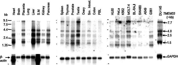 Expression analyses of <t>TMEM33</t> transcripts in normal human tissues and human cancer cell lines. The <t>mRNA</t> blots (Clontech) were sequentially probed with a radiolabeled TMEM33 cDNA probe, followed by β - actin or GAPDH cDNA probe. S.M., smooth muscle; PBL, peripheral blood lymphocytes; HL-60, promyelogenous leukemia; K-562, chronic myelogenous leukemia; MOLT-4, lymphoblastic leukemia; BL-Raji, Burkitt's lymphoma; SW480, colorectal adenocarcinoma; A549, lung carcinoma; G361, melanoma; DU-145, prostate cancer