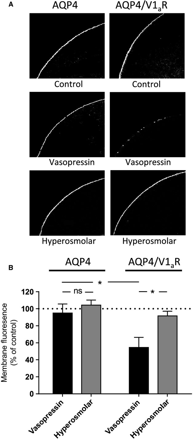 V1 a R-dependent internalization of AQP4. (A) Confocal laser scanning microscopy of oocytes expressing either AQP4 (left panel) or AQP4/V1 a R (right panel) immune-labeled for AQP4. The upper panels are representative images of oocytes exposed to control solution without vasopressin for 80 min. The middle panels are representative images of oocytes kept in control solution for 20 min and then treated with 1 μ mol/L vasopressin for 60 min. The lower panels are representative images of oocytes treated with a 50 mOsm hyperosmolar gradient for 30 sec every 10 min of an 80-min incubation period. (B) Oocyte plasma membrane fluorescence intensity normalized to that of the oocytes kept in control solution, n = 5 experiments with 3–6 oocytes per condition. The indicated groups were compared using one-way analysis of variance (ANOVA) with Šídák's multiple comparison post hoc test. * P