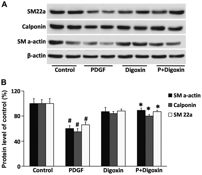 Effect of digoxin on the regulation of smooth muscle cell contractile profiles. Vascular smooth muscle cells (VSMCs) were pre-cultured in the serum-free medium for 24 h and then treated with the digoxin (100 nM) for 24 h and then stimulated with platelet-derived growth factor (PDGF)-BB (25 µ g/l) for 24 h. (A) Protein levels of SM22a, calponin and SM α-actin were determined by western blot analysis and quantified by densitometry. β-actin was used as an internal control. (B) Bar graphs showing the quantification of the western blots; results are expressed as percentages of the control. The results are expressed as relative values from 3 independent experiments. ( # P