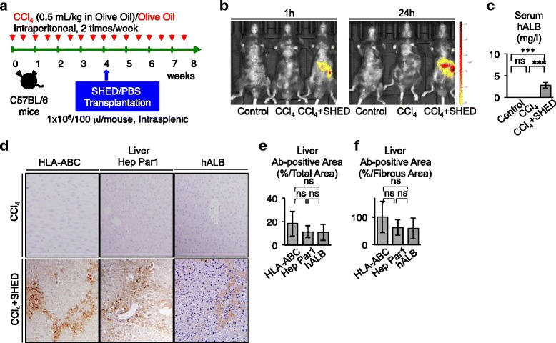 SHED differentiate into human hepatocyte-like cells in recipient livers of CCl 4 -treated mice. a Schema of CCl 4 treatment and SHED transplantation in mice. C57BL/6 mice intraperitoneally received CCl 4 (0.5 ml/kg) or olive oil only twice a week ( red arrows ). Four weeks after the treatment, SHED (1 × 10 6 ) were transplanted into the CCl 4 -treated mice through the spleen. Phosphate-buffered saline ( PBS ) was infused as the control for the transplantation. b In vivo monitoring of transplanted DiR-labeled SHED in CCl 4 -treated mice 1 hour (1h) or 24 hours (24h) after the infusion. Dorsal position. c Enzyme-linked immunosorbent assay of human albumin ( hALB ) in the recipient serum. d – f Distribution of transplanted SHED in recipient livers. Immunohistochemistry with anti-human HLA-ABC, anti-hepatocyte paraffin 1 (Hep Par1), or anti-hALB antibody. Representative images. d Counterstaining with hematoxylin. The human HLA-ABC, hepatocyte paraffin 1, or hALB antibody positive area. Immunopositive area shown as the ratio to e the total area or f the fibrous area. c , e , f n = 5 for all groups. * P