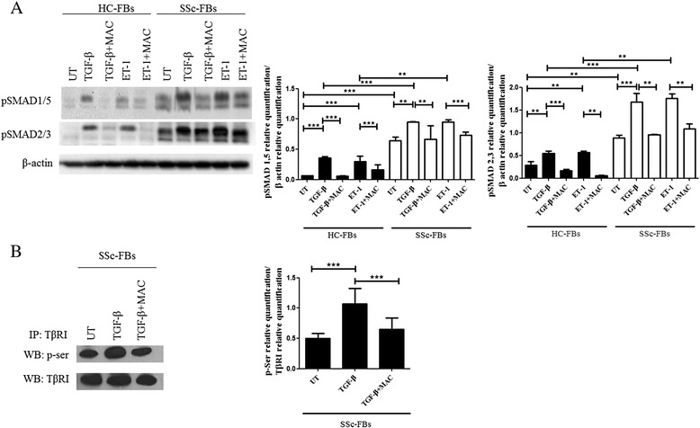Macitentan (MAC) blocked transforming growth factor beta type I receptor (TβRI) activation. a Protein expression of phospho-Sma and Mad Related (pSMAD)1/5 and pSMAD2/3. Transforming growth factor beta (TGF-β) and endothelin-1 (ET-1) effects induced a significant increase of both SMAD2/3 and SMAD1/5 phosphorylation. MAC significantly blocked both TGF-β and ET-1 effects. The phospho-SMAD levels were significantly higher in systemic sclerosis (SSc) patients. Pictures are representative of all experiments. Protein bands were quantified by densitometry and the values are expressed as protein relative quantification/β actin relative quantification. b TβRI was immunoprecipitated (IP) and its phosphorylation was assessed by Western blot (WB). The immunoprecipitation assay showed a serine phosphorylation in TβRI after TGF-β treatment. MAC significantly inhibited the TβRI phosphorylation. Immunoprecipitated protein bands were quantified by densitometry and the values are expressed as protein relative quantification/TβRI relative quantification. ** p = 0.0002, *** p = 0.0001. UT untreated