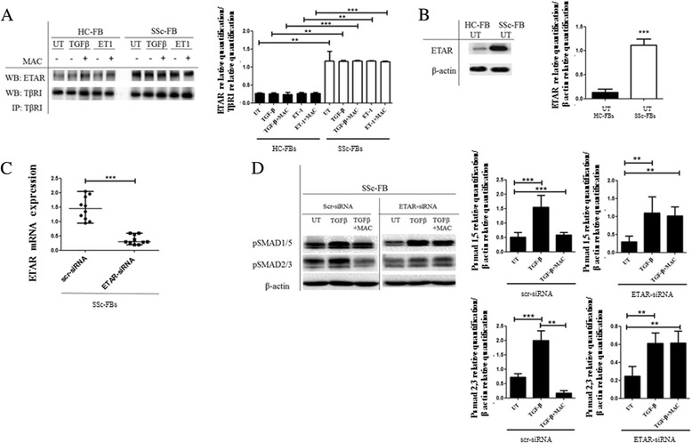 Transforming growth factor beta type I receptor (TβRI)/endothelin-1 receptor A (ETAR) co-immunoprecipitation. a TβRI was immunoprecipitated (IP) and its association with ETAR was assessed by Western blot (WB). The immunoprecipitation assay showed an association between ETAR and TβRI, independent of both transforming growth factor beta (TGF-β) and endothelin-1 (ET-1) stimulation. In systemic sclerosis (SSc) fibroblasts (FBs), the levels of co-immunoprecipitated receptors were significantly higher when compared with healthy control (HC) FBs. Blot was representative of all the experiments. Co-immunoprecipitated protein bands were quantified by densitometry and the values are expressed as protein relative quantification/TβRI relative quantification. b Western blot of ETAR protein. In SSc FBs, ETAR expression was significantly higher when compared with HC FBs. Blot was representative of all the experiments. The protein bands were quantified by densitometry and the values are expressed as protein relative quantification/β actin relative quantification. c SSc FBs were transfected with specific ETAR siRNA or nontargeting scramble scr-siRNA, and ETAR expression was evaluated by quantitative RT-PCR. The cells transfected with ETAR siRNA showed a decreased expression of ETAR gene, when compared with cells transfected with scr-siRNA. d Western blot of phospho-Sma and Mad Related (pSMAD)1/5 and pSMAD2/3. In SSc FBs treated with scr-siRNA, TGF-β induced a significant increase in SMAD phosphorylation, and macitentan (MAC) inhibited this effect. In SSc FBs treated with ETAR siRNA, TGF-β induced a significant increase in SMAD phosphorylation, and MAC failed to inhibit this effect. Pictures are representative of all experiments. Protein bands were quantified by densitometry and the values were expressed as protein relative quantification/β actin relative quantification. ** p = 0.0002, *** p = 0.0001. UT untreated