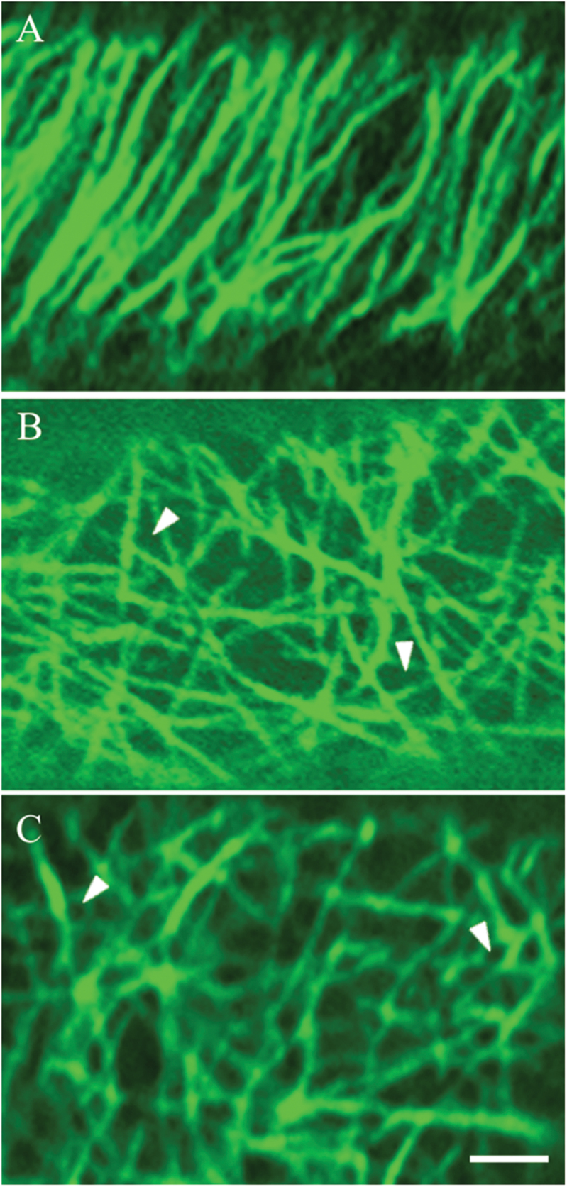 Confocal images of three categories of CMT arrays observed in adaxial epidermal cells of V. faba cotyledons cultured for 24h. CMT arrays immunolabelled with anti-α-tubulin and IgG–Alexa Fluor 488 conjugate. (A) 'Organized': parallel arrays of thick CMT bundles. (B) 'Randomized': an array defined by thick, strongly labelled CMT bundles arranged in a random network with distinctive polygonal gaps (arrowheads) in the network. (C) 'Randomized with depletion zones': an array composed of circular depletion zones surrounded by a possible combination of fine fragmented CMTs and tubulin monomers sometimes appearing like a collar (arrowheads). Bar, 2.5 μm.