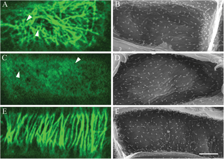 Effect of oryzalin and taxol on CMT array and wall ingrowth papillae formation in adaxial epidermal cells of cultured V. faba cotyledons. Confocal images of CMTs immunolabelled with anti-α-tubulin and IgG–Alexa Fluor 488 conjugate (A, C, E) and SEM images of the cytoplasmic face of the outer periclinal wall to visualize wall ingrowth papillae (B, D, F) of epidermal cells of cotyledons cultured for 24h in MS medium alone (A, B) or 24h in the presence of, 20 µM oryzalin (C, D) or 5 µM taxol (E, F). In the presence of oryzalin, CMT arrays were depolymerized and then tubulin aggregated and exhibited depletion zones (arrowheads in C). In contrast, CMT arrays were stabilized in the presence of taxol (E) retaining an alignment comparable to those located in freshly harvested cotyledons (c.f. Fig. 2A ). Bar, 10 µm.