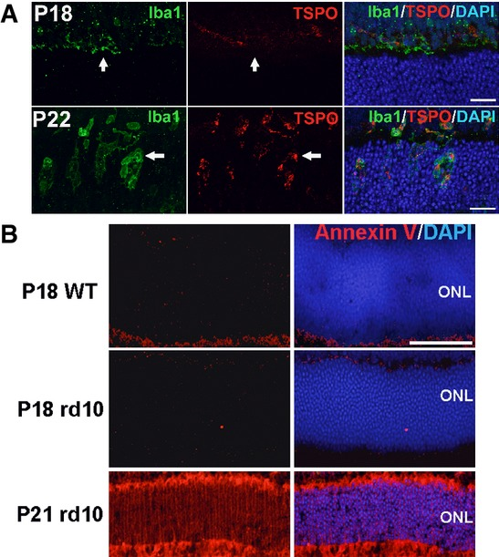 Activation status of microglia infiltrating the outer nuclear layer (ONL) and the exposure of phosphatidylserine (PS) on ONL photoreceptors Microglia infiltrating the outer nuclear layer (ONL) of the rd10 retina during rod photoreceptor degeneration demonstrate markers of activation. At P18, Iba1 + microglia (green, arrow) in the outer plexiform layer were negative for TSPO (red), an activation marker. At P22, Iba1 + microglia (arrow) infiltrated the ONL and acquired TSPO immunopositivity, indicating their activated status. Scale bars, 25 μm. Phosphatidylserine (PS) exposure in ONL nuclei of unfixed cryosections of rd10 retina during rod degeneration. PS exposure in the ONL was monitored in unfixed frozen sections using fluorescently conjugated annexin V which binds cell-surface PS. While minimal annexin V staining was evident in the ONL in P18 wild-type (top row) and P18 rd10 (middle row) retinas in which rod degeneration is absent, staining was prominent in P21 rd10 retina during rod degeneration (bottom row). Scale bar, 40 μm.