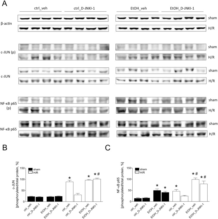 Two h after the end of resuscitation, liver tissue was harvested and western blot for the phosphorylated or non- phosphorylated c-JUN (Fig 6A), p65 subunit of NF-κB and β-actin was performed. Lanes 1–4: liver protein extracts from ctrl-fed mice treated with veh, lanes 5–8: ctrl-fed mice treated with D-JNKI-1, lanes 9–12: EtOH-fed mice treated with veh and lanes 13–16: EtOH-fed mice treated with D-JNKI-1. Sham operated animals underwent the surgical procedures but hemorrhagic shock with resuscitation (H/R) was not carried out. In Fig 6B, the ratio of phosphorylated c-JUN and p65 subunit of c-JUN and NF-κB, respectively, and total protein after densitometric measurements and normalization to β-actin is represented. (*: p