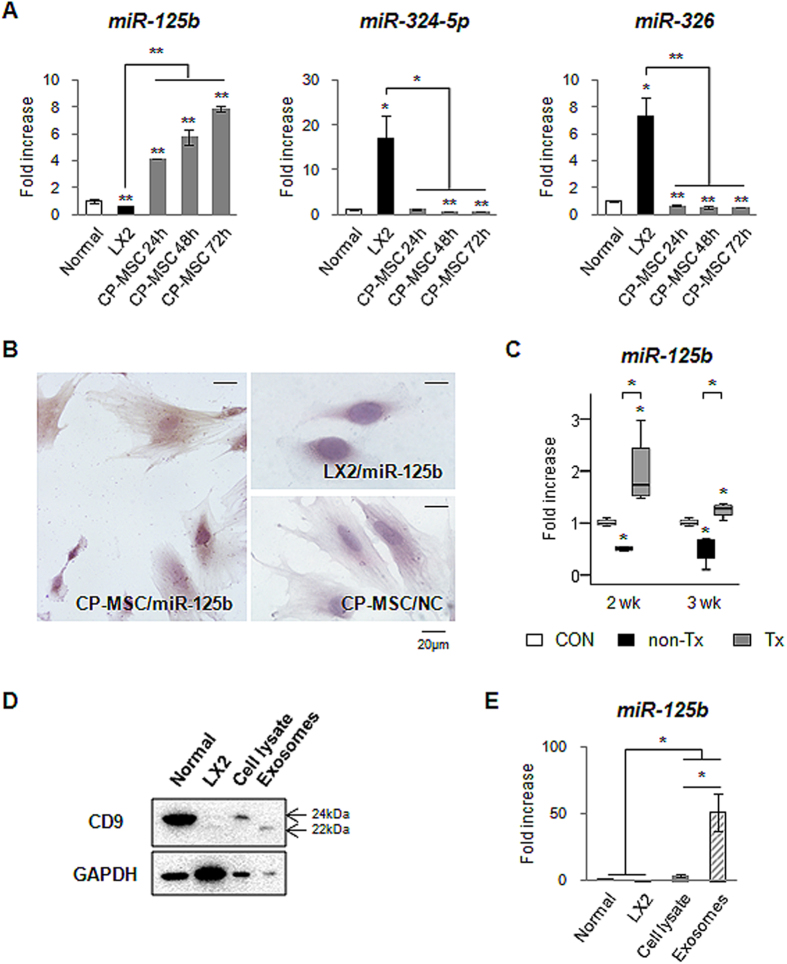 MiRNA-125b is expressed in CP-MSCs. ( A ) QRT-PCR analysis of the expression of miRNA-125b, miRNA-324-5 p and miRNA-326 in human normal liver (Normal), LX2 (human HSC line) and human CP-MSCs cultured during 72 hours. The mean ± SEM results obtained from three repetitive experiments are graphed (* p