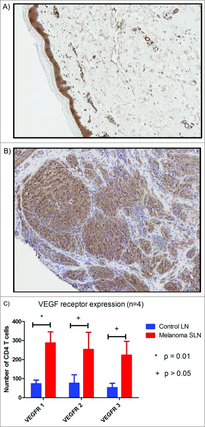 Representative immunohistochemistry slides (5x) stained with anti-VEGF antibody from ( A ) benign nevi with no VEGF staining and ( B ) melanoma with diffuse cytoplasmic staining. ( C ) Histogram comparing VEGF receptor expression within melanoma SLN and control lymph nodes.