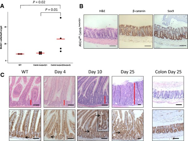 Single copy activation of β-catenin only slowly transforms the intestine Only activation of both alleles of β-catenin led to hyperproliferation in the small intestine. Proliferation of wild-type (WT), AhCre ER Catnb lox(ex3)/ + and AhCre ER Catnb lox(ex3)/lox(ex3) mice 5 days after induction was scored by counting the number of BrdU-positive cells/half-crypt. N ≥ 3 per group, at least 25 crypts per mouse were scored, P -value of one-sided Mann–Whitney U -test. Activation of one of copy β-catenin in an aged AhCre ER Catnb lox(ex3)/ + at day 25 post-induction with no phenotype in the colon. For comparison to a WT colon, see Appendix Fig S3 . Scale bar, 100 μm. Activation of one copy of β-catenin in VilCreER Catnb lox(ex3)/ + leads to the same crypt-progenitor cell phenotype (red bar) with similar kinetics as observed in AhCre ER Catnb lox(ex3)/ + mice. Scale bar, 100 μm.
