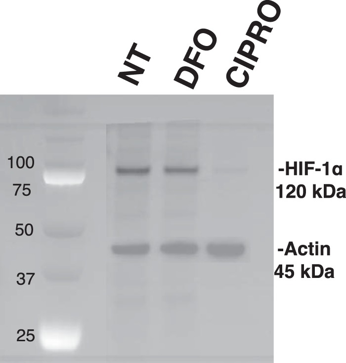 HIF-1α mRNA translation is repressed in CIPRO-treated cells. HIF-1α and actin immunoprecipitation after metabolic labeling with [ 35 S]Met. Cell cultures were treated with 1 m m CIPRO or 100 μ m DFO after methionine starvation, and then nascent proteins were radiolabeled and immunoprecipitated for further processing and imaging.