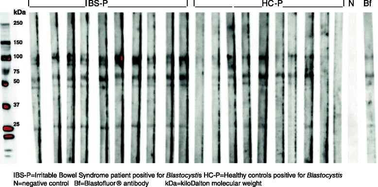 Serum antibodies from <t>Blastocystis</t> –positive clinical subgroups IBS-P and HC-P, and Blastofluor® Ab reacting with Blastocystis proteins in Western blot