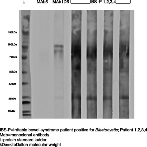 Serum antibodies from clinical subgroup IBS-P and monoclonal antibodies MAb1D5 and MAb5 reacting with Blastocystis proteins in Western blot