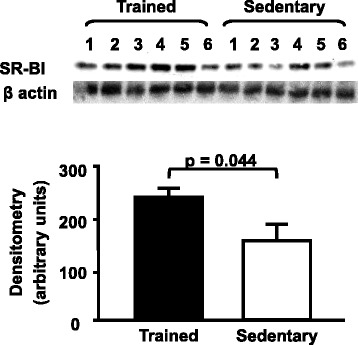 Hepatic SR-BI protein level in trained and sedentary C57BL/6N wild type mice. Equal amounts of liver lysates were applied into a 10 % polyacrylamide gel. Immunoblotting was performed by using an anti-SR-BI Ab (1:1000), incubation with secondary Ab conjugated with HRP and bands visualization after ECL reaction. Each lane represents one animal sample. Data are expressed as mean values ± standard error