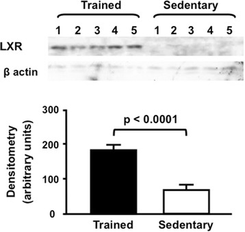 Hepatic LXR protein level in trained and sedentary C57BL/6N wild type mice. Equal amounts of liver lysates were applied into a 10 % polyacrylamide gel. Immunoblotting was performed by using an anti-LXR Ab (1:1000), incubation with secondary Ab conjugated with <t>HRP</t> and bands visualization after <t>ECL</t> reaction. Each lane represents one animal sample. Data are expressed as mean values ± standard error