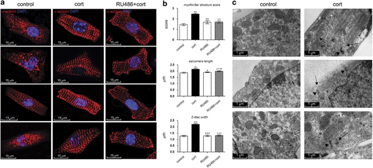 Corticosterone promotes myofibril maturation in foetal cardiomyocytes in a GR-dependent manner. ( a ) Representative images of control (untreated) primary foetal C57BL/6 cardiomyocytes (left panels), or following 100 nM corticosterone (cort) for 24 h (centre panels). To block GR-mediated effects, cells were pre-treated with 1 μ M RU38486 (RU486) for 30 min prior to addition of 100 nM corticosterone for 24 h (RU486+cort; right panels). Cells were stained with α -actinin (red, Z-discs) and DAPI (blue, nuclei). ( b ) Quantification of the effect of 100 nM cort on myofibrillar structure (top graph, see Materials and Methods for details of the scoring system), sarcomere length (middle graph), and Z-structure/Z-disc width (bottom graph). Data were analysed by one-way ANOVA with Bonferroni's post-hoc test; ** P