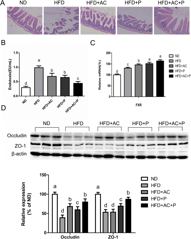 Probiotics and AC reduced endotoxin levels in rats and promoted ZO-1, occludin expression, and FXR mRNA expression. (A) Pathological morphology observed in rat ileum, Original magnification, ×100 (B) Serum levels of endotoxin. Data are expressed as mean±SD(n = 6). (C) Intestinal mRNA expression levels of the FXR genes. Results are expressed as mean±SD (n = 6) (D) Expression of ZO-1 and occludin were analysed by western bloting. The ß-actin expression was used as a loading control. Data are expressed as mean±SD (n = 3). All mean values within treatment groups with different lowercase letters are significantly different (P