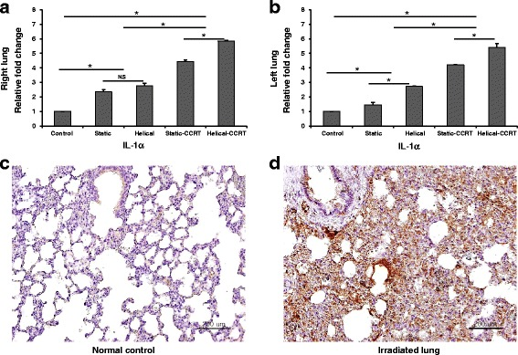 Tissue expression of <t>IL-1α.</t> a Right lung samples demonstrated higher tissue IL-1α expression compared to the untreated control samples. b Left lung samples revealed upregulated tissue IL-1α expression. Immunohistochemical staining with anti-IL-1α antibody of c normal control and d right lung sample treated with helical tomotherapy with CCRT. * p