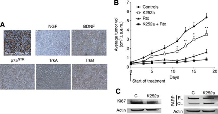 In vivo efficacy of <t>K252a</t> in a DLBCL xenograft model. For the GCB-DLBCL xenograft model, SCID mice were injected with 1 × 10 7 SUDHL4 cells subcutaneously. ( A ) The human SUDHL4 cell origin of tumours was confirmed by immunohistochemistry (with anti-human CD20) and representative stainings for NGF, BDNF, Trk, and p75 NTR receptor are done (× 400). ( B ) After the tumours had become established (∼6 weeks after tumour inoculation), mice were treated with vehicle (Controls, n =10), K252a (0.5 mg kg −1 , n =10) or rituximab (25 mg kg −1 , n =5) or both agents ( n =8) for 3 weeks. Results are expressed as mean tumour volumes (cm 3 )±s.d. *, ** P