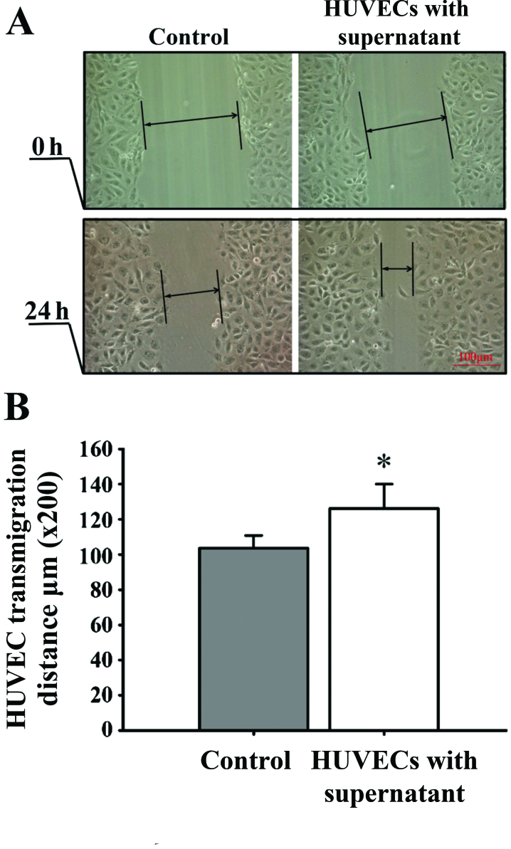 Analysis of the migration of human umbilical vein endothelial cells <t>(HUVECs)</t> by scratch-wound assay. (A) Migration of HUVECs cultured for 24 h in the supernatant of control retinal pigment epithelial cells <t>(RPE</t> cells) (left panel) and in the supernatant of RPE cells epxosed to hypoxia (right panel) (x200 magnification). (B) HUVEC migration rate. The scratch width of each group was 200 µm, and the cell migration distance of the cells between the scratch edges was observed after 24 h. Results shown are the means ± SD; n=8. Compared with the control group, cutlure with the supernatant from hypoxic RPE cells significantly increased the HUVEC migration rate. *p