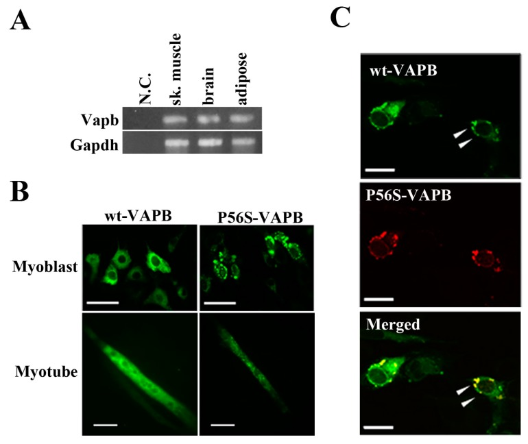 P56S mutation leads to aberrant aggregation of VAPB in C2C12 cells. ( A ) VAPB mRNA expression was analyzed by RT-PCR. Total RNA was collected from the indicated tissues of mice. N.C. indicates negative control (sample in which no reverse transcriptase was added); ( B ) C2C12 cells were transfected with the indicated plasmids and fixed either before inducing differentiation ( upper : Myoblast) or five days after differentiation ( lower : Myotube). The distribution of the VAPB protein is indicated by GFP expression; ( C ) C2C12 cells were co-transfected with vectors encoding C-terminally GFP-fused wt-VAPB and Ds-Red-fused P56S-VAPB, followed by fixation 24 h after transfection. Scale bar = 20 μm. The merged image is shown on the bottom. Examples of co-localization are indicated with arrowheads. These images are representative of three similar experiments.