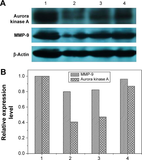 Western blotting ( A ) and quantitative analysis ( B ) for the expression level of aurora kinase A and MMP-9 after DNAzyme transfection. Notes: 1: No treatment; 2: N -Ac- l -Leu-PEI/Dz; 3: Lipofectamine™2000/Dz; and 4: N -Ac- l -Leu-PEI/iDz. Abbreviations: N -Ac- l -Leu-PEI, N -acetyl- l -leucine-polyethylenimine; iDz, inactive DNAzyme; MMP-9, matrix metalloproteinase-9.
