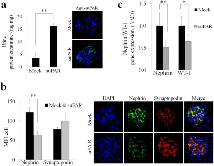 Injection of high doses of recombinant mouse suPAR into uPAR-knockout (Plaur −/− ) mouse model induces down-regulation of nephrin expression. ( a ) Quantification (left panel) of the ratio between urine total protein (mg)/creatinine (mg) concentration of suPAR treated mice with high dose of 20 μg of mouse recombinant for 24 hours vs control mice (Mock) (N = 3 mice for group). Immune-fluorescence in green (right panel) of suPAR (488 Alexa Fluor) deposit into glomerular tissue of suPAR treated Plaur −/− mice. ( b ) Quantification (left panel) of immunoflourescence staining of nephrin and synaptopodin expression in Mock and suPAR treated mice. (N = 3 mice for group). DAPI staining was used to determine cell numbers. Data are expressed as average of MFI/cell ±SD. Representative immunoflourescence staining (right panel) of nephrin in green (488 Alexa Fluor), synaptopodin in red (594 Alexa Fluor) and nucleus in blue (DAPI) expression in untreated (Mock) and suPAR treated mice (N = 3 mice for group). (c) QPCR analysis of nephrin and WT-1 expression in Mock and suPAR treated mice obtained by using specific mice TaqMan assays and expressed as relative fold change ±SD vs. mock cells. (N = 3 mice for group). Statistical significance ( P ) is indicated by asterisks and is represented as: *