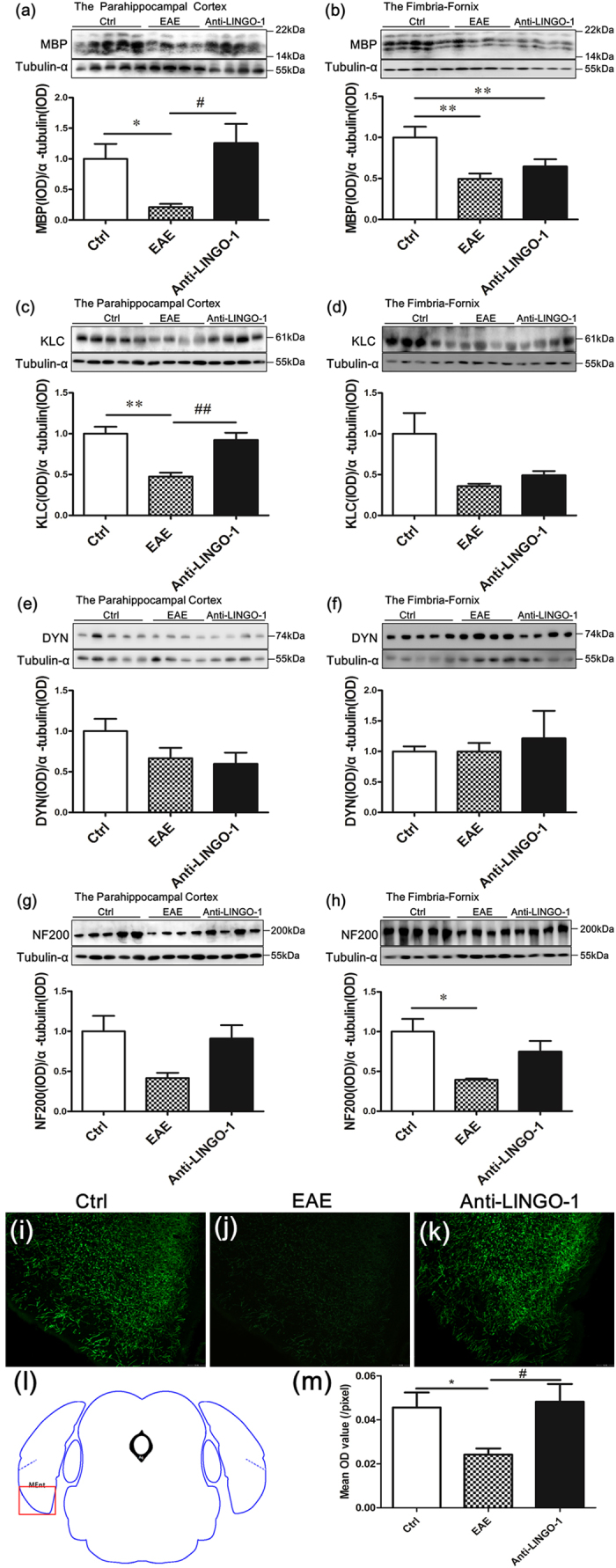 LINGO-1 antibody promotes parahippocampal cortex (PHC) remyelination in EAE mice. ( a , b ) The EAE mice exhibited demyelination in the PHC and fimbria-fornix. After a six-week treatment with the LINGO-1 antibody, the level of MBP was significantly increased in the PHC, but no significant change was observed in the fimbria-fornix. ( c ) We found a severe reduction in the expression of kinesin light chain (KLC), in the PHC of the EAE mice compared with controls, and the KLC expression was restored in the anti-LINGO-1 treated mice. ( e )No significant differences were found for dynein (DYN), in the PHC of the EAE mice and the LINGO-1 antibody treated mice. ( g ) A reduction in the expression of neurofilament 200 (NF200), was detected in the EAE mice, and a slight increase was observed in the LINGO-1 antibody-treated mice. ( d , h ) KLC/NF200 expression was also decreased in the fimbria-fornix of the EAE but was not restored to normal levels in the EAE mice treated with the LINGO-1 antibody. ( f ) There was no significant difference in the expression of DYN among the three groups of mice. ( i – k ) Immunohistochemical staining for MBP in the three groups ( l ) Medial entorhinal cortex (MEnt) is an important subregion of the parahippocampal cortex. Schematic diagram display the scope we get the image in the microscope. ( j ) One-way ANOV A with least significance difference (LSD) test was used to determine statistical significance of MBP. The mean OD value was decline in the EAE mice and after LINGO-1 treatment, it was increased. n(Ctrl) = 3, n(EAE) = 4, n(Anti-LINGO-1) = 3. *Denotes statistical significance compared with controls (P