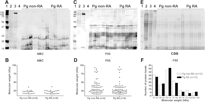 Patterns of citrullinated proteins of P. gingivalis isolates from patients with or without RA. ( A,C,E ) Western blots and Coomassie staining of bacterial cell lysates of 12 representative P. gingivalis isolates of patients with or without RA (both n = 6). ( A ) Citrullinated protein patterns as detected with the AMC detection method (AMC). ( C ) Citrullinated protein patterns as detected with the F95 anti-citrulline antibody (F95). ( E ) Coomassie staining. ( B,D ) Graphical representation of the Western blots shown in panels ( A,C ). ( B ) Citrullinated protein patterns as detected with the AMC detection method (AMC). ( D ) Citrullinated protein patterns as detected with the F95 anti-citrulline antibody (F95). ( F ) Graphical representation of citrullinated protein patterns as detected by Western blots using the F95 anti-citrulline antibody (F95) against bacterial cell lysates of 24 representative P. gingivalis isolates of patients with or without RA (both n = 12). The Western blots were analyzed with the same image display settings. 1 = Molecular weight marker in kilo Dalton (kDa), 2 = P. asaccharolytica, 3 = P. endodontalis, 4 = F. nucleatum, Pg non-RA = P. gingivalis isolates from subjects without RA, Pg RA = P. gingivalis isolates of patients with RA. The strong positive staining at circa 120 kDa in P. endodontalis (3) both with the AMC and the F95 detection method (panels A,C) is due to non-specific binding of the secondary antibody.