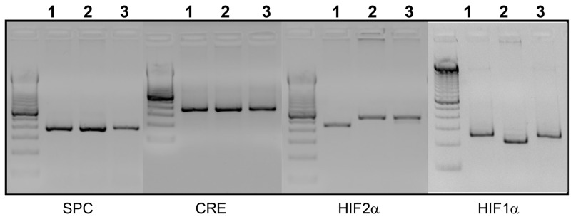 Genotyping of transgenes. PCR genotyping was performed for all four transgenes as described in materials and methods. Sizes of the amplified products obtained are: 240 bp for Hif-1α (wild type); 274 bp for Hif-1α flox/flox ; 410 bp for Hif-2α (wild type); 444bp for Hif-2α flox/flox ; 370 bpfor Cre transgene; 350 bpfor rtTA transgene. One representative sample was genotyped for the four transgenes from each of three generated mouse strains: SPC-rtTA -/tg /(tetO) 7 -Cre -/tg /Hif-1α fl/fl ( Lane 1 ), SPC-rtTA -/tg /(tetO) 7 -Cre -/tg /Hif-2α fl/fl mouse ( Lane 2 ), and SPC-rtTA -/tg /(tetO) 7 -Cre -/tg /Hif-1α/2α fl/fl ( Lane 3 )).
