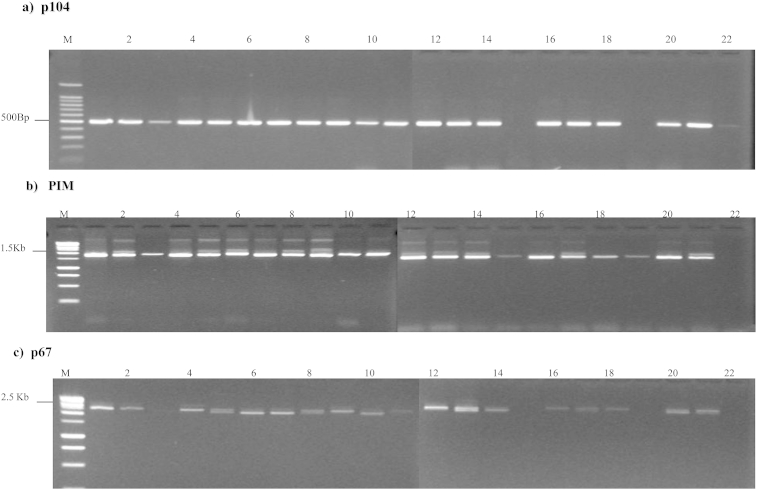 PCR amplification of genes encoding Theileria parva antigens from Marula schizont-infected leukocyte cultures. Panel A, p104 primers; Panel B PIM, primers; Panel C p67 primers. The order of the schizont-infected lymphocyte samples is (1) N6; (2). N13; (3). N18; (4). N20; (5). N33; (6). N36; (7). N38; (8). N43; (9). N50; (10). N55; (11). N69; (12). N76; (13). N77, (14). N79; (15). N86, (16). N88; (17). N99; (18). N100; (19). N102; (20). N103; (21). N106; (22). N107.