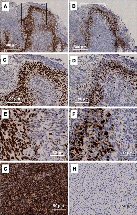 Expression of IL-8 and VEGF mRNA in glioblastoma. VEGF mRNA ( a , c , e ) and IL-8 mRNA ( b , d , f ) by mRNA in situ hybridization are shown in separate 5 μm serial tissue sections from glioblastoma specimens at different magnifications ( a , b : x2; c , d : x10; e , f : x32) by peroxidase staining. Nuclei are counterstained with hematoxylin. Positive (GAPDH mRNA) and negative (DAPB mRNA) controls are reported ( g , h : x20 magnification). Squared areas in panels A and B indicate the detail reported in panels c and d , respectively