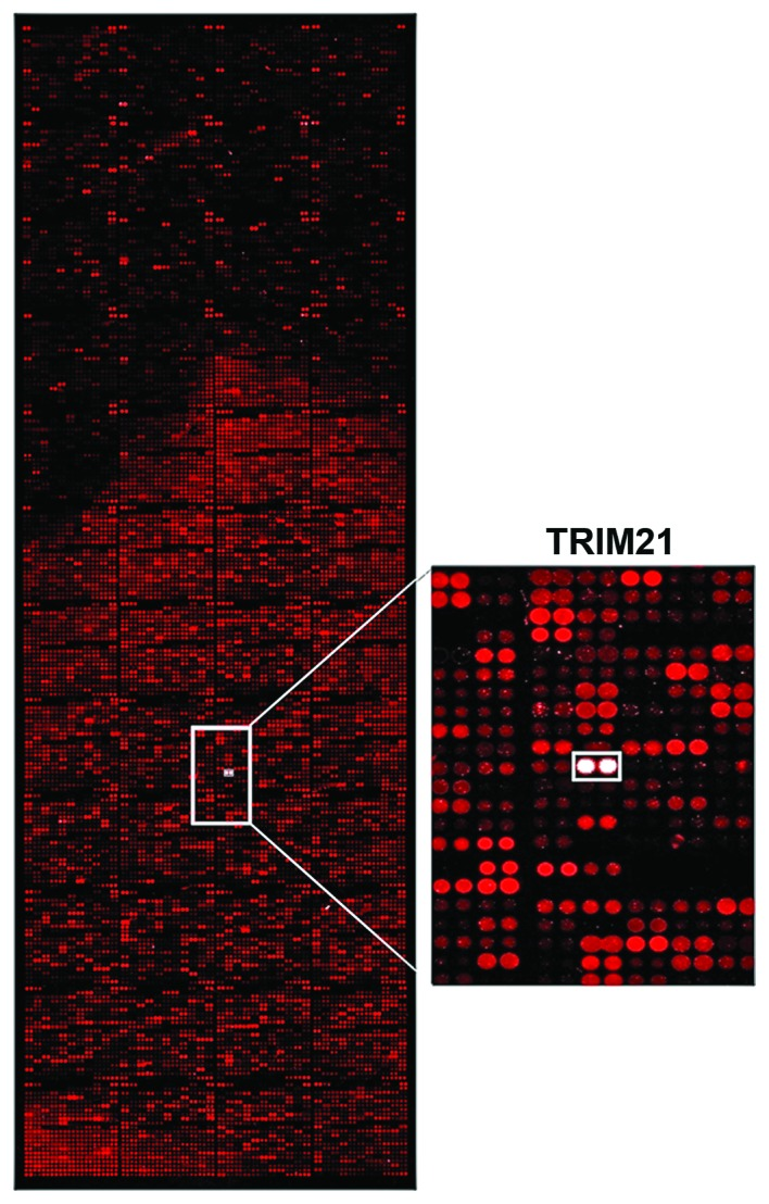 Analysis of the interaction. Array analysis of the interaction of over 9,000 different proteins with LFG. Recombinant LFG protein (10 μM) was used and detected by specific first antibody (FAIM2; Santa Cruz Biotechnology, Inc.) and fluorescence labeled second antibody (Alexa Fluor 546). The display window shows the signal stimulated by the interaction of LFG with TRIM21 (white signal).