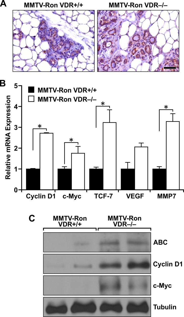 Enhanced downstream β-catenin signaling in Ron-mediated mammary tumorigenesis with VDR ablation A. Representative immunohistochemical staining for β-catenin in MMTV-Ron VDR+/+ and VDR−/− mammary glands from 4 month-old mice demonstrating enhanced expression in the absence of VDR ( n = 6 per genotype). B. qRT-PCR mRNA expression of β-catenin target genes Cyclin D1, c-Myc, TCF-7, VEGF, and MMP7 in mammary tumors from 8 month-old MMTV-Ron VDR+/+ and VDR−/− mice. Data represent mean values from three independent experiments ± SE. C. Western analysis demonstrating enhanced expression of active β-catenin (ABC) levels in two representative MMTV-Ron VDR−/− tumor lysates compared to two MMTV-Ron VDR+/+ tumors that correlates with increased expression of β-catenin target genes cyclin D1 and c-Myc. * P