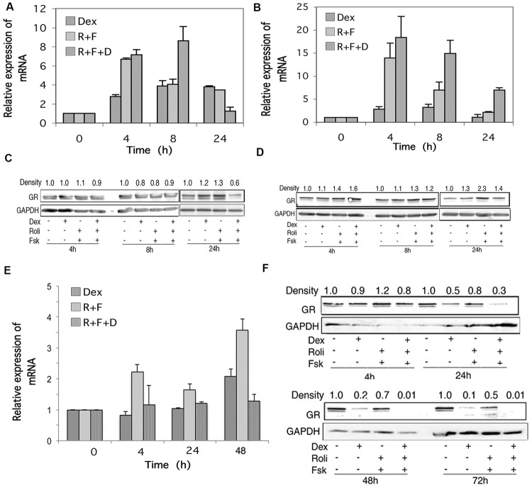 """Glucocorticoid receptor (GR) expression in CEM and MM.1 cells. (A,B,E) Quantitative real-time PCR analysis of GR mRNA expression in CEM-S2 (A) , CEM-R8 (B) , and MM.1S (E) cells, following treatment with 1 μM dexamethasone (Dex), 10 μM rolipram plus 10 μM <t>forskolin</t> (R+F), or 1 μM dexamethasone plus 10 μM rolipram plus 10 μM forskolin (R+F+D) at different times as indicated. Data represent the mean ± SD of at least two independent experiments assayed in triplicate, shown as fold change relative to control. (C,D,F) Western blot analysis of GR protein expression in CEM-S2 (C) , CEM-R8 (D) , and MM.1S (F) cells following treatment at different times with dexamethasone and/or rolipram and forskolin as indicated. Equal amounts of protein (20 μg) from whole cell lysates were added per lane. Data shown represents one of at least two independent experiments with similar results. The numbers at the top of the Western blot images represent the GR band densities following different treatments relative to control, normalized based on the density of the GAPDH housekeeping protein, calculated as described in Section """"Materials and Methods."""""""
