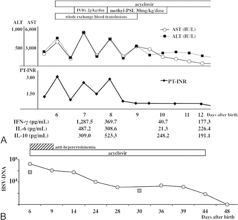 Sequential changes of the liver function and serum cytokine levels during the initial treatment course (A), and those of HSV DNA copy number in serum (•) and cerebrospinal fluid (▪) during the overall treatment course (B). ALT, alanine aminotransferase; AST, aspartate aminotransferase; IVIG, intravenous high-dose immunoglobulin therapy; HSV: herpes simplex virus; IFN, interferon; IL, interleukin; PT–INR, prothrombin time–international normalized ratio.