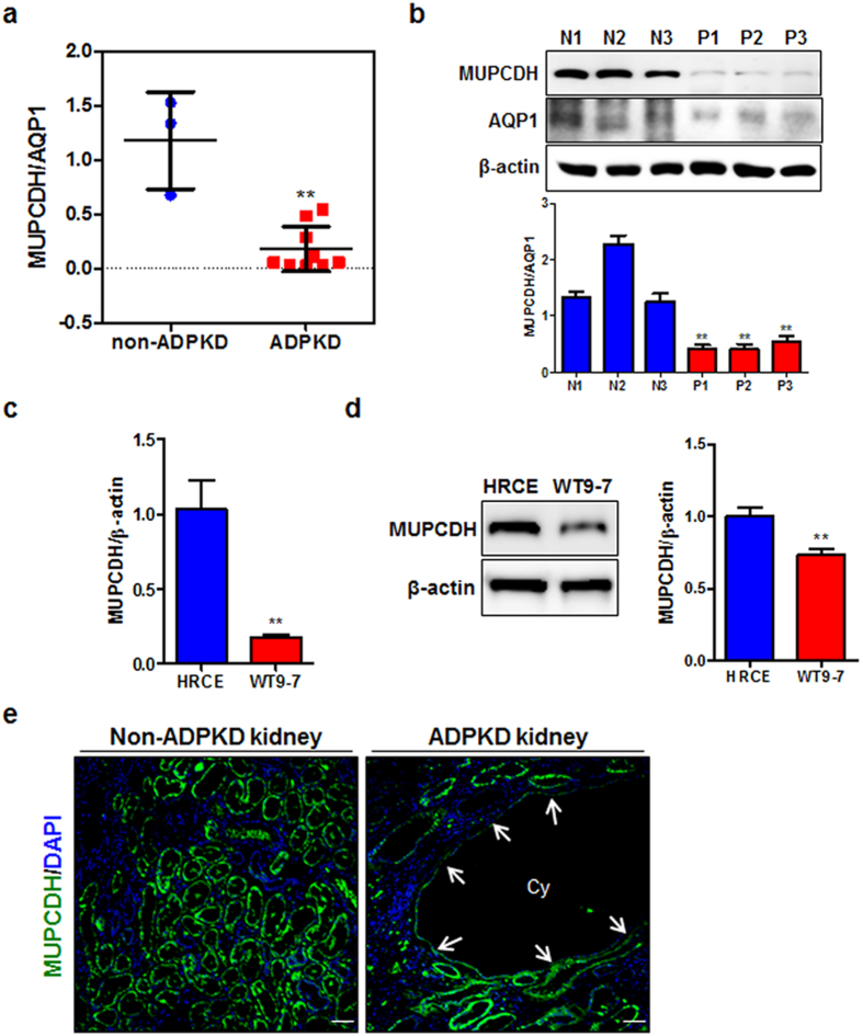 Downregulation of MUPCDH in ADPKD. ( a,b ) Gene expression levels were confirmed by real-time quantitative reverse transcription polymerase chain reaction (qRT-PCR) and western blot analyses, in non-ADPKD and ADPKD renal cortical tissue, and in ( c,d ) human renal cortical epithelial and renal cystic epithelial (WT9-7) cells. The band density in western blot analysis was measured using the MultiGauge software. The height of each bar represents the mean, and the error bars indicate ± SD. Aquaporin 1 (AQP1), which is a proximal tubule marker, and β-Actin were used as internal controls in real-time qRT-PCR and western blot analyses. Each experiment was performed in triplicate. * P