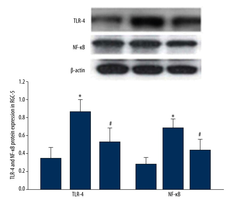 SiRNA HMGB-1 effect on TLR4 and NF-κB protein expression in RGC-5.* TLR-4 P =0.041; NF-κB P =0.024, compared with control; # TLR-4 P =0.032; NF-κB P =0.027, compared with high glucose group.