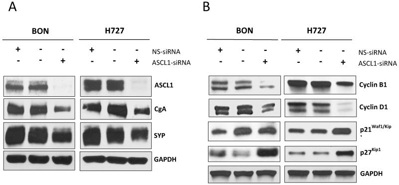 <t>ASCL1</t> suppression reduces neuroendocrine marker production and induces cell-cycle arrest in BON and H727 cells Treatment of BON and H727 cells with an ASCL1 -specific <t>siRNA</t> reduced chromogranin A (CgA) and synaptophysin (SYP) levels, shown by Western blotting. Cells receiving the nonspecific-siRNA (NS-siRNA), exhibited no visible change in ASCL1, CgA or SYP levels relative to cells treated with Lipofectamine 2000 ® alone (no siRNA) (A). Concurrent with ASCL1 suppression following ASCL1 -siRNA treatment, BON and H727 cell lines exhibited a reduction in cyclin B1 and D1 expression, and an increase in p21 Waf1/Cip1 and p27 Kip1 expression, as demonstrated by Western blotting, therefore suggesting the occurrence of cell-cycle arrest. Cells receiving the NS-siRNA experienced no effect on levels of any of these markers (B).