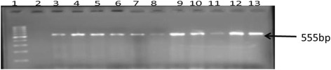 Gel image of amplified PCR products from study isolates with primers designed for stx1 virulent gene. Lane 1 is the MWM (100 bp), lane 2 is the negative control (PCR mix without DNA) with lane 3 as positive control ( E . coli ATCC 35150) while lanes 4 to 13 are stx1 (555 bp) gene amplified from O157 isolates