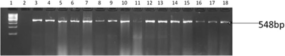 Agarose gel images of amplicons obtained from PCR with primers designed for str A resistance gene of E. coli isolates recovered from this study. Lane 1 is molecular size markers (100 bp), lane 2 is negative control (PCR mix without DNA) while lanes 3 to 18 are str A (548 bp) gene from O157 strains isolated in this study