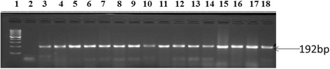 Agarose gel image of amplicons obtained from PCR with primers designed for bla - ampC resistance gene of E . coli isolates recovered from this study. Lane 1 is molecular size markers (100 bp), lane 2 is negative control (PCR mix without DNA) while lanes 3 to 18 are bla- ampC (198 bp) gene from O157 strains isolated in this study