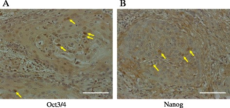 Immunohistochemistry of Oct3/4 and Nanog in TSCC specimens. In the representative cases shown, positive staining of Oct3/4 ( a ) or Nanog ( b ) was observed in the nuclei of the tumor cells (arrows). Original magnification: ×200. Scale bar: 100 μm
