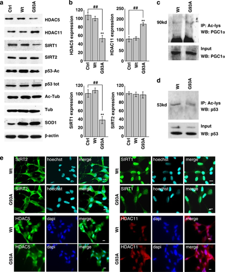 Protein expression patterns of HDAC5, HDAC11, SIRT1 and SIRT2 in differentiated human SH-SY5Y neuroblastoma cells. SH-SY5Y cells were uninfected (Ctrl) or infected with adenoviral vectors coding for wild-type SOD1 (Wt) or G93A-SOD1 (G93A). ( a ) Western blot analysis of 20 μ g of cell lysate using antibodies against HDAC5, HDAC11, SIRT1, SIRT2, p53-Ac and Ac-tubulin. β -Actin was used as loading control, SOD1 as infection control, and P -53 and tubulin to monitor the acetylation rate. ( b ) Densitometric analysis of n =3 experiments as in ( a ). Values significantly different from relative controls are indicated with ** ,## P