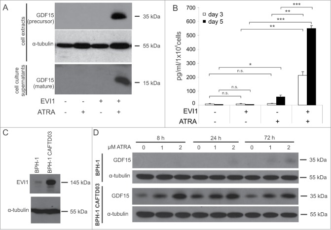 EVI1 and ATRA synergistically induce GDF15 protein in myeloid and in epithelial cells. ( A ) U937_vec and U937_EVI1 cells were treated with solvent or ATRA for 3 or 5 days, and the intracellular precursor and secreted mature forms of GDF15 were detected in whole cell extracts (day 3) and culture supernatants (day 5), respectively, by immunoblot analysis. Both forms are disulfide linked homodimers, and the corresponding 35 kDa and 15 kDa monomers are detected after reducing SDS-PAGE. ( B ) U937_vec and U937_EVI1 cells were treated with solvent or ATRA for 3 or 5 days, and mature GDF15 was detected in culture supernatants by ELISA. Results represent means + SEs from 3 independent experiments. Significance was calculated using Student's 2-tailed t-test (*, P