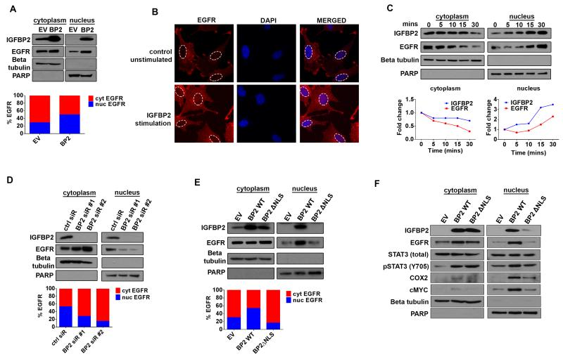 IGFBP2 drives EGFR nuclear accumulation ( A ) Immunoblot analysis of cytoplasmic (cyt) and nuclear (nuc) fractions of SNB19.EV and SNB19.BP2 cells. Beta-tubulin represents a loading control for the cytoplasmic fraction, and PARP represents a loading control for the nuclear fraction. Densitometric analysis represented by the bar graph, demonstrates percentage of cytoplasmic or nuclear EGFR. ( B ) Confocal images of SNB19 parental cells and SNB19 parental cells stimulated with exogenous IGFBP2 protein (250ng/mL for 30 minutes). Cells were stained for EGFR (red) and the nuclei stained with DAPI (blue). ( C ) Immunoblot analysis of cytoplasmic and nuclear fractions of SNB19 parental cells stimulated with exogenous IGFBP2 (250ng/mL for indicated times). The graph represents fold-change of cytoplasmic or nuclear IGFBP2 and EGFR calculated from densitometric analysis of the immunoblot bands. ( D) Immunoblot analysis comparing cytoplasmic and nuclear fractions of SNB19.BP2 cells depleted of IGFBP2 via 2 independent pools of IGFBP2 siRNA (BP2 siR #1, #2) to cells transfected with scrambled negative control siRNA (ctrl siR). Densitometric analysis represented by the bar graph, demonstrates percentage of cytoplasmic or nuclear EGFR. ( E ) Immunoblot analysis of cytoplasmic and nuclear fractions of transiently transfected SNB19.EV, SNB19.BP2 wild type (BP2 WT) and SNB19 with a mutated IGFBP2 nuclear localization signal (BP2ΔNLS). Densitometric analysis represented by the bar graph, demonstrates percentage of cytoplasmic or nuclear EGFR. ( F ) Immunoblot analysis of cytoplasmic and nuclear proteins in stable SNB19.EV, SNB19.BP2 WT and SNB19.BP2ΔNLS cells.