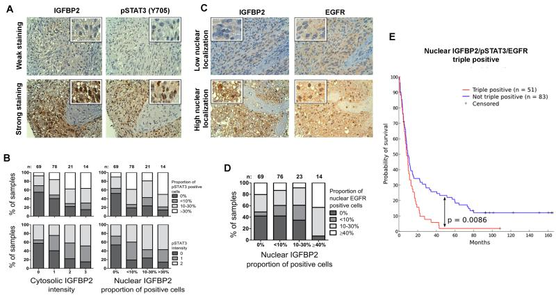 IGFBP2 correlates with STAT3 activation and nuclear EGFR localization in clinical samples Expression and localization of IGFBP2, pSTAT3(Y705) and EGFR were detected with immunohistochemistry from a TMA that included 222 human grade 2-4 gliomas. ( A ) TMA immunostaining images (magnification 40×) representing weak and strong staining of IGFBP2 and pSTAT3(Y705). ( B ) Cytosolic and nuclear IGFBP2 expression associated with the percentage of cells positive for pSTAT3 and with pSTAT3 staining intensity. Bar graphs illustrate the increasing fractions of pSTAT3-positive cells and pSTAT3 intensity upon increasing IGFBP2 intensity or nuclear accumulation. ( C ) TMA immunostaining images (magnification 40×) representing low and high nuclear localization of IGFBP2 and EGFR. ( D ) Nuclear IGFBP2 associated with nuclear EGFR. The bar graph illustrates the fraction of samples with increasing nuclear EGFR localization upon increasing nuclear accumulation of IGFBP2. ( E ) Nuclear co-localization of IGFBP2, EGFR and phosphorylated STAT3 predicted poor survival among patients with human grade 2-4 glioma. Patients were stratified into 2 cohorts based on the nuclear staining of all 3 proteins: triple positives (≥1% of cells with nuclear expression, n=51, red line) and all other cases (n=83, blue line). Survival rates were visualized by using a Kaplan-Meier survival plot (p=0.0086).