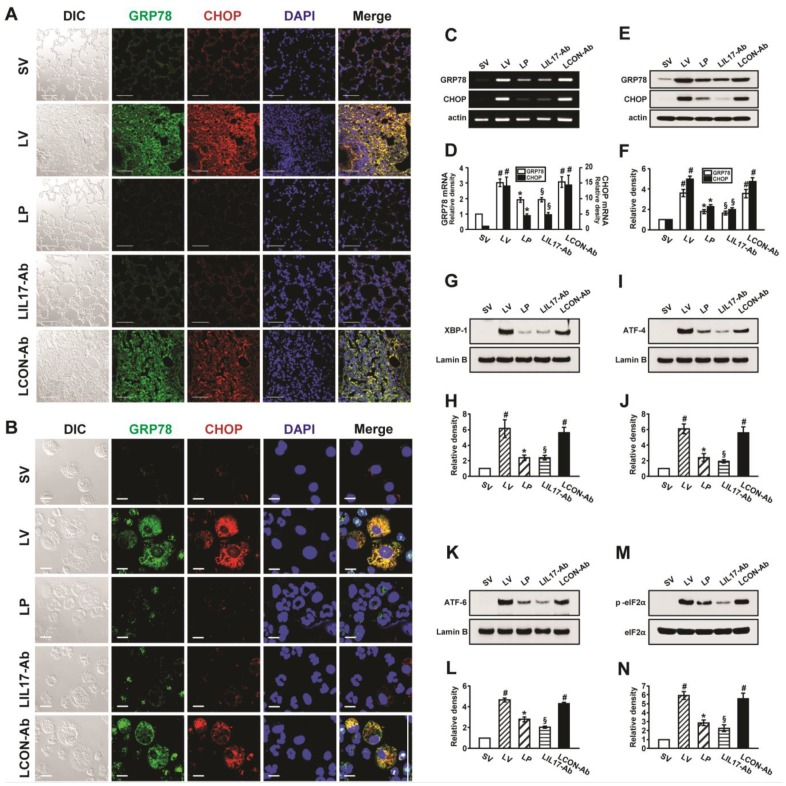 Effects of anti-IL-17A antibody or 4-PBA on ER stress markers and UPR-related proteins. (A and B) Representative confocal laser immunofluorescence photomicrographs of lung tissues (A) and BAL cells (B) from saline-instilled mice given injections of vehicle (SV), LPS-instilled mice given injections of vehicle (LV), LPS-instilled mice given intraperitoneal injections of 4-PBA of 200 mg/kg (LP), LPS-instilled mice given intravenous injections of anti-IL-17 antibody of 5 mg/kg (LIL17-Ab), or LPS-instilled mice given intravenous injections of isotype control monoclonal antibody (LCON-Ab). Sampling was performed at 48 hours after the instillation of LPS. Bars indicate 50 μm. DIC means 'Differential interference contrast'. (C and D) Representative RT-PCR and semi-quantative analyses for mRNA of GRP78 and CHOP. (E-N) Representative immunoblots of GRP78 (E) , CHOP (E) , XBP-1 (G) , ATF-4 (I) , ATF-6 (K) and p-eIF2α (M) in lung tissues and densitometric analyses of GRP78 (F) , CHOP (F) , XBP-1 (H) , ATF-4 (J) , ATF-6 (L) , and p-eIF2α (M) . Bars represent mean ± SEM from 5 or 6 mice/group. # P